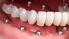 Làm lại cả hàm răng bằng phương pháp nào tốt nhất?
