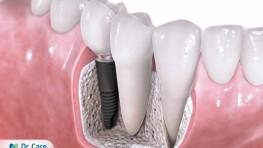 Implant nha khoa là gì? Những điều cần biết về phương pháp Implant