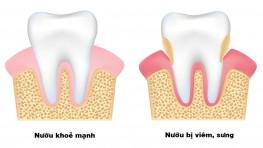Bị sưng nướu răng có mủ: nguyên nhân và cách điều trị hiệu quả