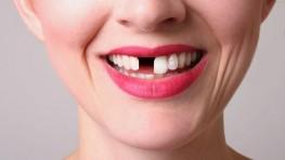 Cách trồng răng cửa bằng cấy ghép Implant không đau