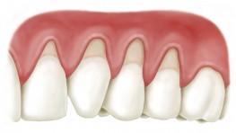 Tụt lợi là gì và cách chữa tụt lợi chân răng