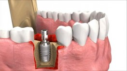 Chi phí ghép xương răng là bao nhiêu? Bảng giá mới nhất 2019
