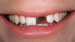 Cách chữa tiêu xương chân răng hiệu quả nhất hiện nay