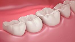 Bị mất răng hàm có sao không? Nguyên nhân và cách khắc phục hiệu quả