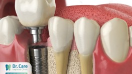 Trồng răng Implant (Cấy ghép Implant) - công nghệ làm răng giả mới nhất hiện nay