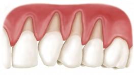 Nguyên nhân gây tụt nướu răng và cách chữa trị hiệu quả