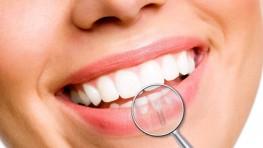Công dụng của cấy ghép Implant với răng đã mất