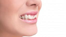Tư vấn trồng răng khểnh hết bao nhiêu tiền mỗi chiếc