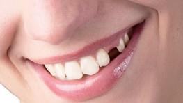 Trồng răng nanh bao nhiêu tiền và phương pháp nào tốt nhất?