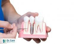 Mất răng bao lâu thì bị tiêu xương hàm?