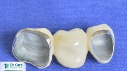 Làm răng Titan giá bao nhiêu và nên lựa chọn phương pháp nào?