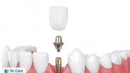 Răng giả làm bằng gì và loại nào tốt nhất hiện nay?