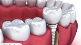 Răng giả bị sâu: Nguyên nhân và cách phục hình răng tốt nhất