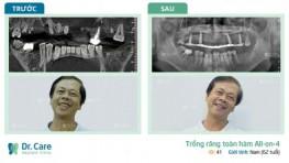 Tạm biệt hàm tháo lắp lỏng lẻo, chú Ẩn rất tự tin giao tiếp với răng Implant
