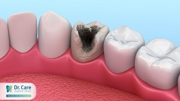 Sâu răng hay gặp ở vị trí nào trên răng?