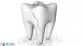 Nguyên nhân và cách xử lý răng bị mẻ tại nhà