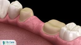 Trồng răng số 5 phương pháp nào tốt nhất? Bao nhiêu tiền?