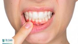Bị viêm chân răng giả phải làm sao?