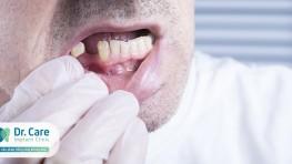 Mất răng hàm dưới trồng lại bao nhiêu tiền?