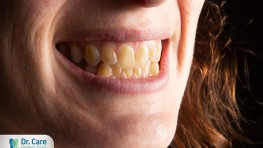 Nguyên nhân gây ra sự lão hóa răng và cách phòng ngừa