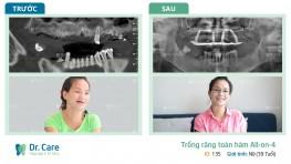 Thay hàm tháo lắp bằng răng Implant, chị Thủy thấy trẻ hơn xưa rất nhiều