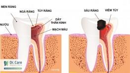 Viêm tủy răng là gì? Những hậu quả khi bị viêm tủy răng?