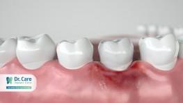 3 biến chứng viêm nướu răng nguy hiểm không ngờ tới