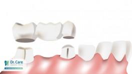 Răng giả bị lung lay làm thế nào để khắc phục?