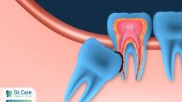 Nhổ răng khôn có đau không và những điều lưu ý