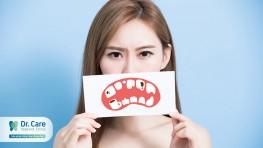 Mọc răng khôn có ý nghĩa gì và có hại không?