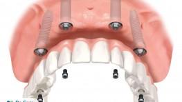 Phương pháp trồng răng Implant All-on-4 cho người mất răng toàn hàm