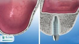 Phẫu thuật nâng xoang hàm trong trồng răng implant