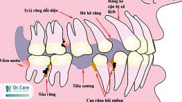 7 Hậu quả khôn lường khi mất răng