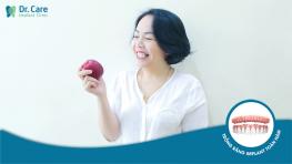 Giá trị của răng Implant là ở chất lượng trọn đời nào phải chi phí