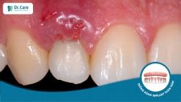 3 nguyên nhân dẫn đến viêm quanh Implant và cách điều trị dứt điểm