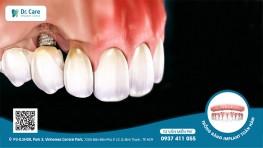 Răng Implant bị lung lay - Nguyên nhân và cách khắc phục