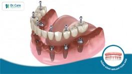 Cùng Bác sĩ Dr. Care khám phá 4 kỹ thuật trồng răng Implant toàn hàm tại nha khoa chuyên sâu