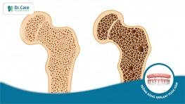 Loãng xương có trồng răng Implant được không?