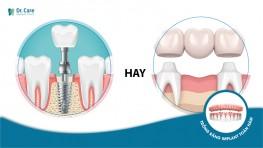 Vì sao nên bỏ cầu răng sứ để trồng răng Implant?