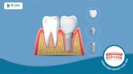 Cấu tạo của răng Implant. Giá 1 răng implant bao nhiêu tiền?