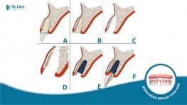 Kỹ thuật cấy ghép Implant tức thì: Cứu cánh cho vùng răng cửa