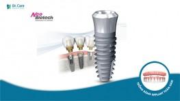 Trụ Implant Neo Biotech - Tìm hiểm xuất xứ, ưu điểm và giá cả