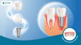 Trồng răng Implant tại Dr. Care: An toàn, không đau, giảm thiểu tối đa biến chứng