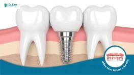 Chỉ 15.5 triệu trồng răng Implant ở Dr. Care, có đáng không?
