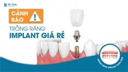 Cảnh báo: Bí mật giảm giá gây sốc của Implant giá rẻ!
