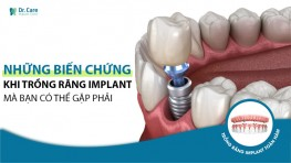 Những biến chứng khi trồng răng implant mà bạn có thể gặp phải