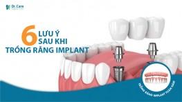 6 điều cần lưu ý sau khi trồng răng implant để sử dụng gần như trọn đời