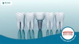 6 bước cắm implant tiêu chuẩn an toàn, không đau