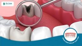 Răng Implant bị vỡ - Nguyên nhân và cách khắc phục