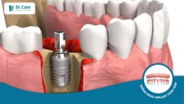 Dr. Care Implant Clinic